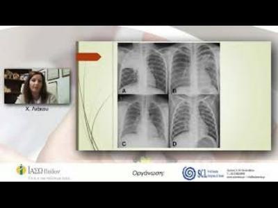 Λοίμωξη από Μυκόπλασμα στην παιδική ηλικία: Συνήθεις προβληματισμοί - Χ. Λιάκου